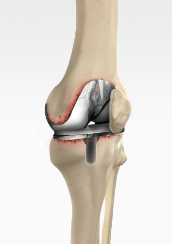 Revision Knee Replacement